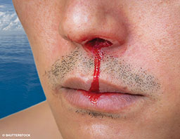 A man with a bit of stubble on his lip and chin has a very bad bloody nose from his left nostril