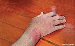 A right hand has a bad rash.