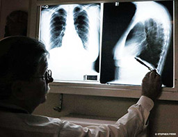 A mustached-doctor looks at two x-rays of lungs