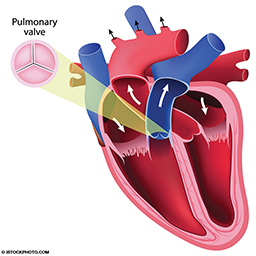 A colorful illustration of the heart that shows the pulmonary valve