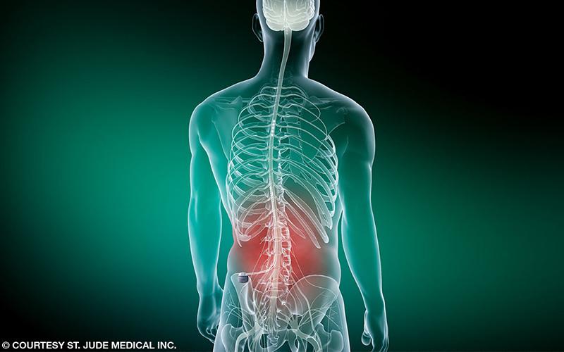Illustration of skeleton with back pain