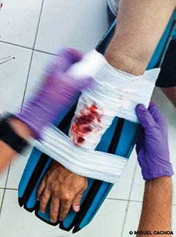 A bloody arm in a splint