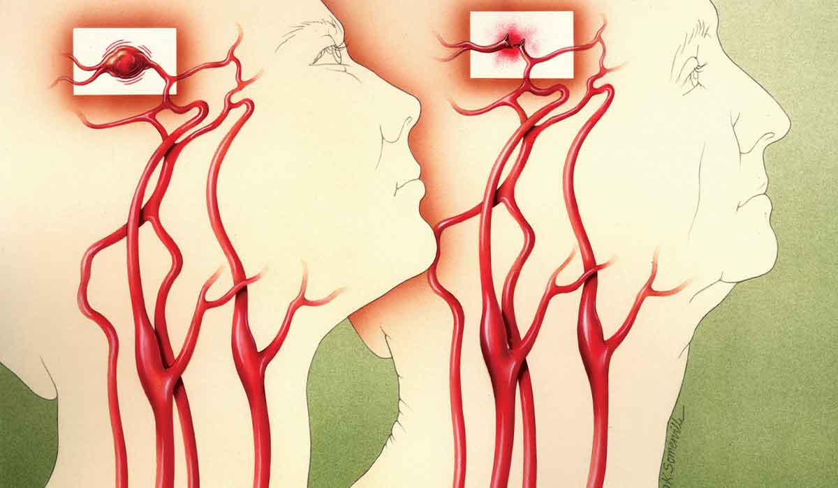 Illustration of two heads showing aneurysms