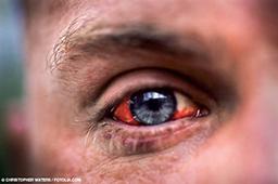 Close-up image of a man's bloodshot left eye