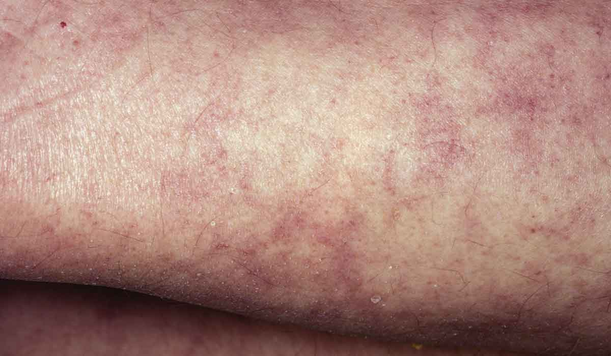 Close-up image of two arms with a rash, or skin bends