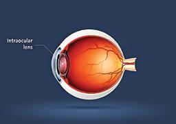 Illustration of a cut-in-half eyeball